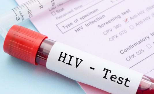 Prueba de sangre de VIH
