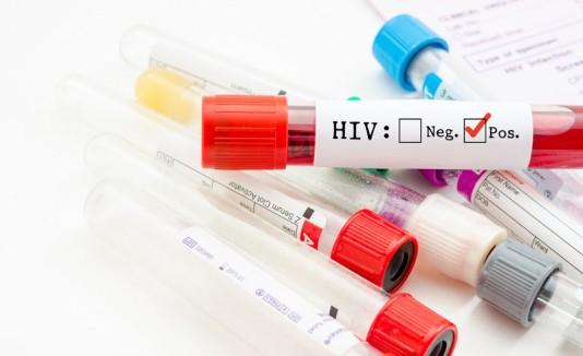 Resultado positivo de VIH
