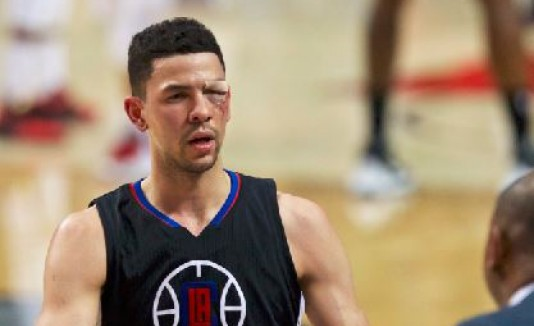 Codazo deja sangrando a jugador de los Clippers