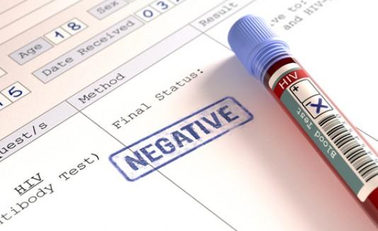 VIH negativo