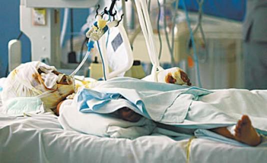 Nena Muerta Por Rot Wailer: Niña Desfigurada Por Un Perro Será Operada En Boston
